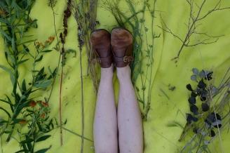 Emily's allergic Legs